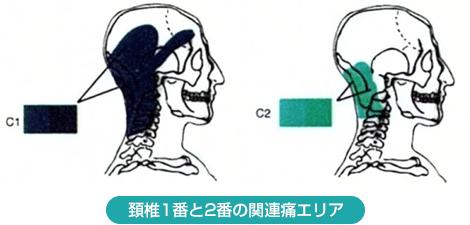 後頭 神経痛 ストレッチ