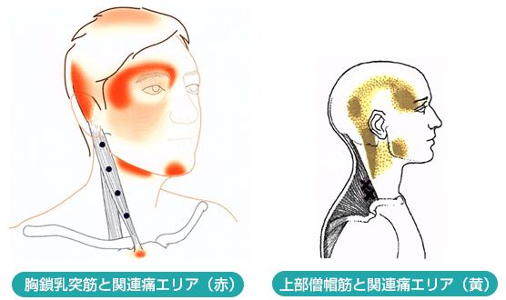 が 後頭部 首筋 痛い から 首から頭にかけて痛みが走る症状原因